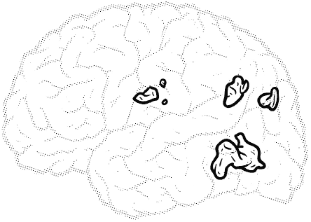 brain with very few highlighted area