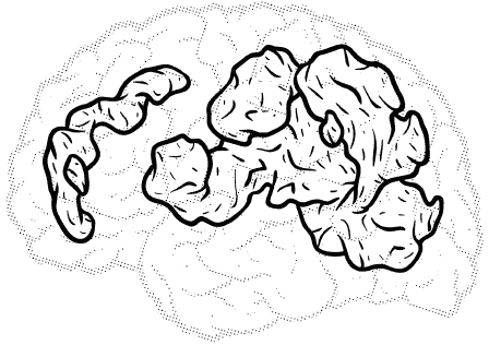 brain with a lot of highlighted areas