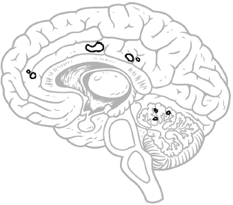 brain side view, areas outlined
